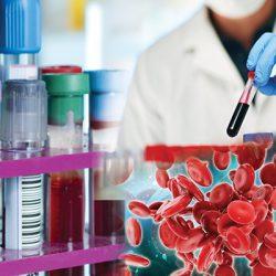 Hematology Diagnostics